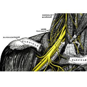 נזק עצבי בצוואר